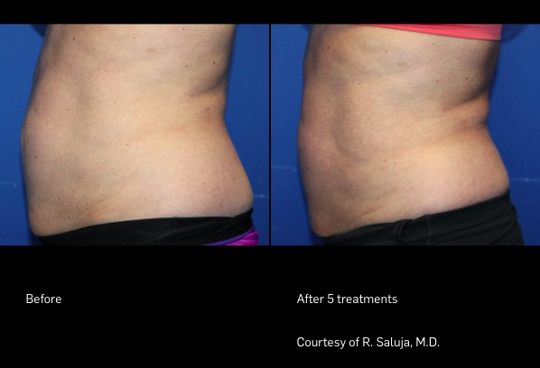 FlexSure Before and After | Body Contouring
