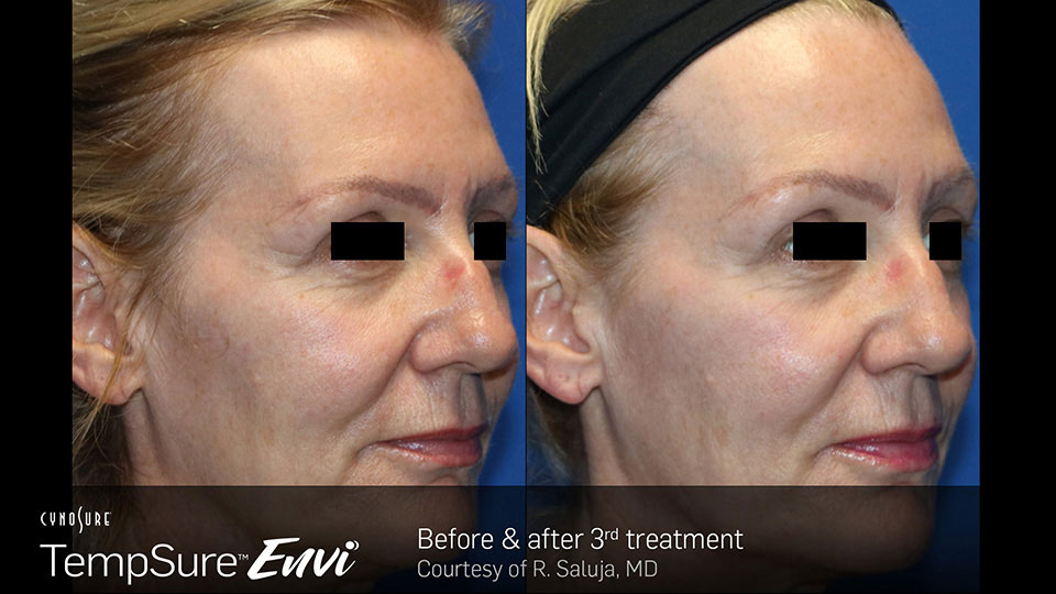 TempSure Envi Before and After | Skin Tightening